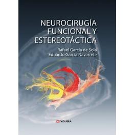 Neurocirugía funcional y estereotáctica